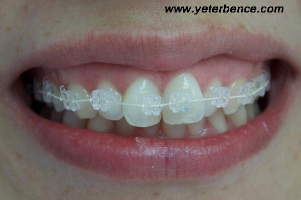 diş teli nasıl takılır, diş teli takıldıktan sonra, diş teli nasıl taktırılır