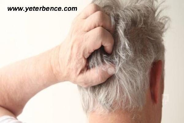 saç kaşıntısını geçirme, saç kaşıntısına çözüm, saç kaşıntısını geçirme