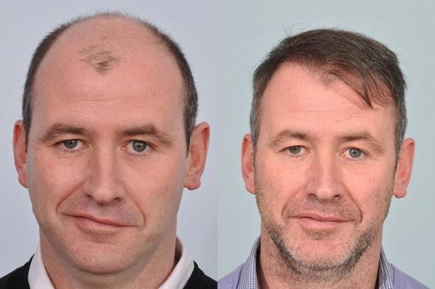 en iyi saç ekim merkezleri, saç ekim merkezi doktorları, saç ektirme merkezi