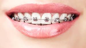 diş teli nedir, hijyenik diş teli kullanımı