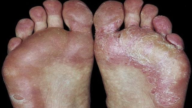 ayak mantarı, ayak mantarı tedavisi, ayak mantarı nasıl tedavi edilir
