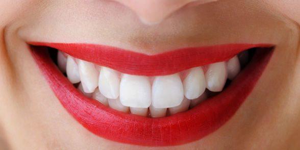 lamine diş yapımı, lamine diş uygulaması, sık kullanılan lamine diş uygulamaları