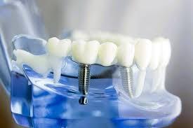 implant markaları, en iyi implant markaları, kaliteli implant markaları