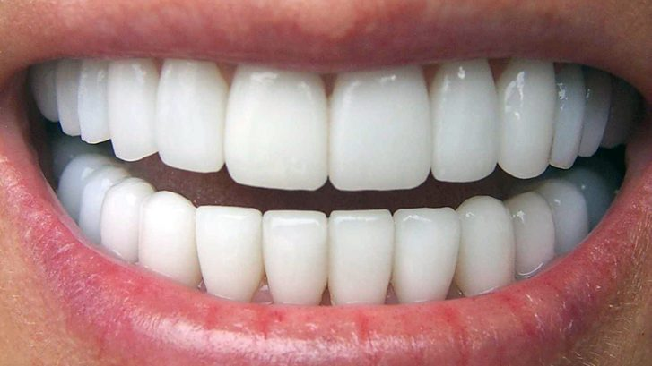 diş kaplaması, diş kaplaması yapımı, diş kaplaması ücreti