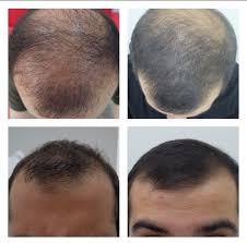 saç ekimi, saç ekimi yapımı, saç ekimi operasyonu