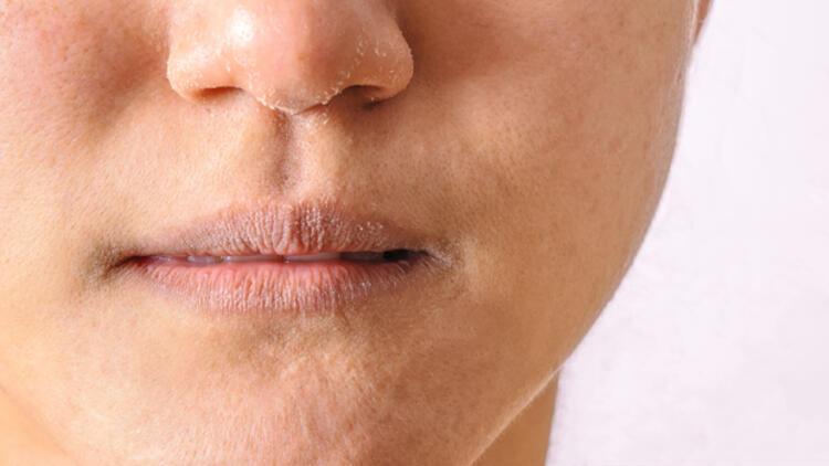 dudak çatlaması, dudak çatlamasına bitkisel çözüm, dudak çatlaması tedavisinde bitki kullanımı