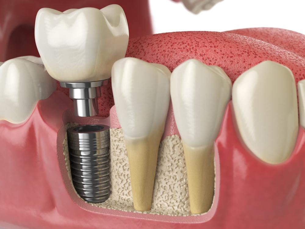 implant fiyatları, implant fiyatları ne kadar, implant yaptırma fiyatları